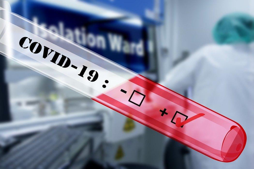 Preminule tri osobe, 363 nova slučaja koronavirusa